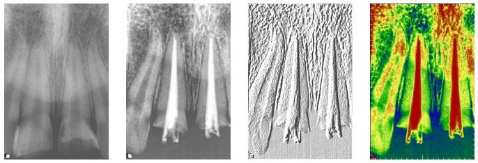 Tratamiento de conductos en dientes que han sido afectados en su paquete vásculo nervioso.